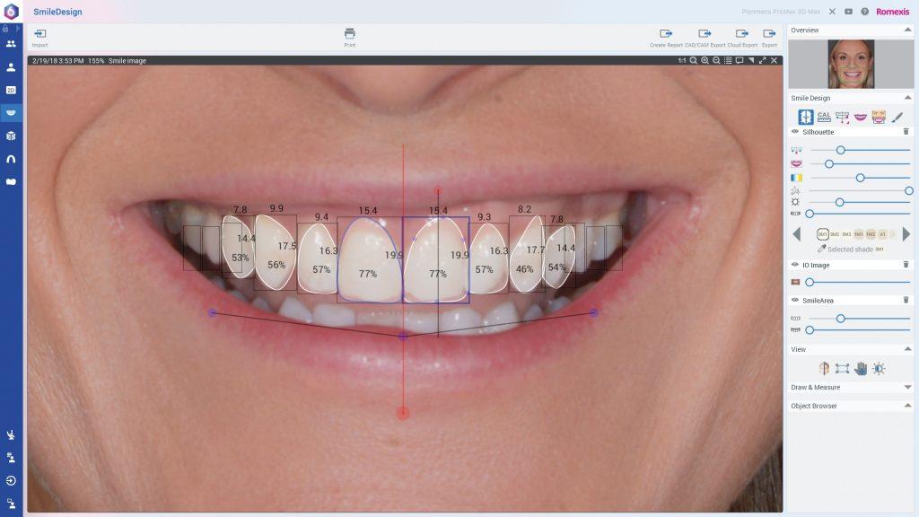 Smile Design