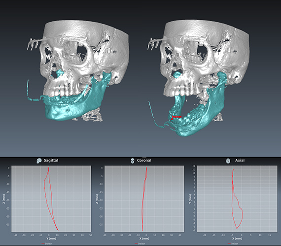 4D Jaw Motion