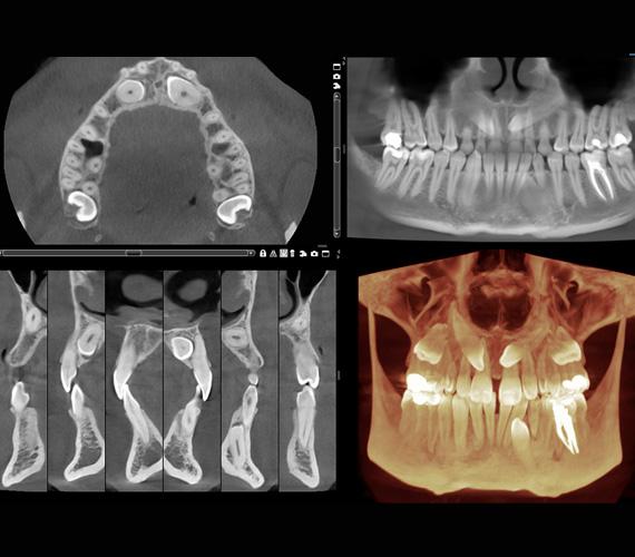 3D diagnostika